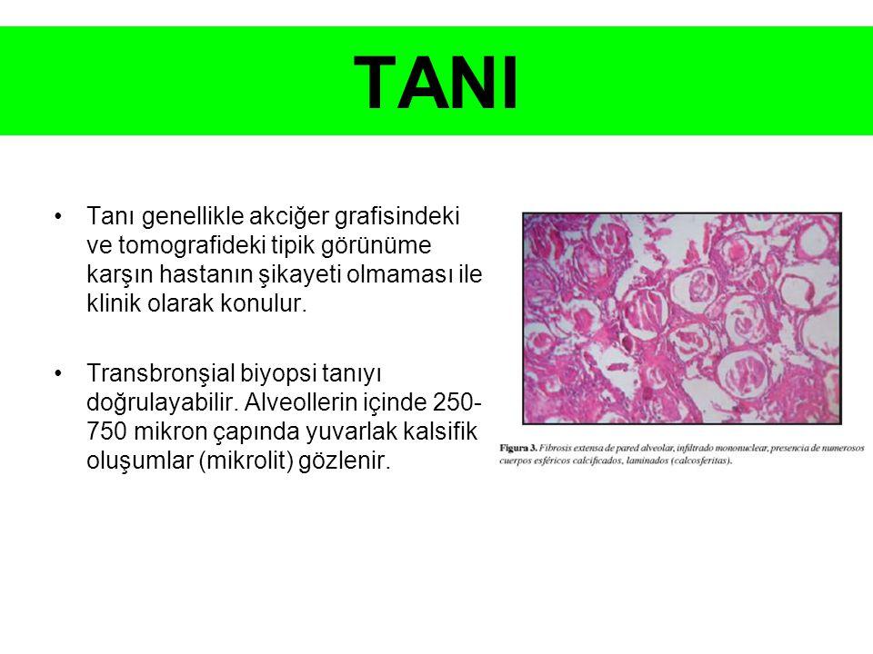 TANI Tanı genellikle akciğer grafisindeki ve tomografideki tipik görünüme karşın hastanın şikayeti olmaması ile klinik olarak konulur.