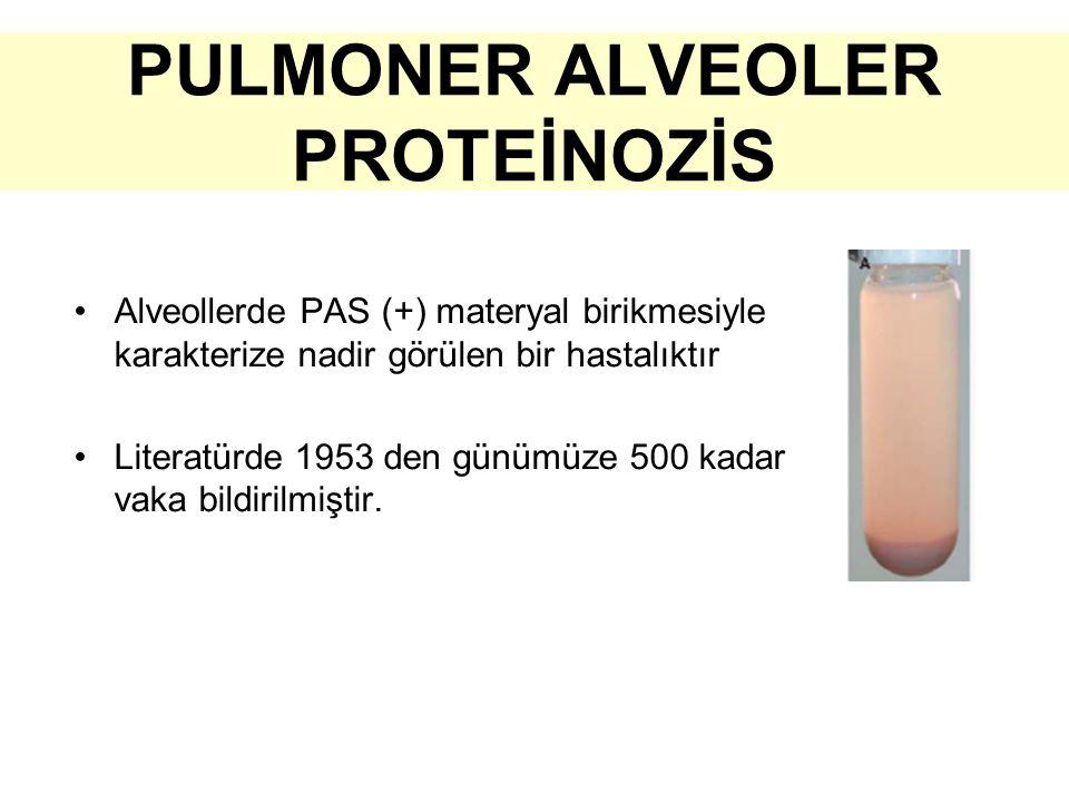 PULMONER ALVEOLER PROTEİNOZİS