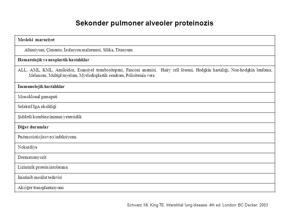 Sekonder pulmoner alveoler proteinozis