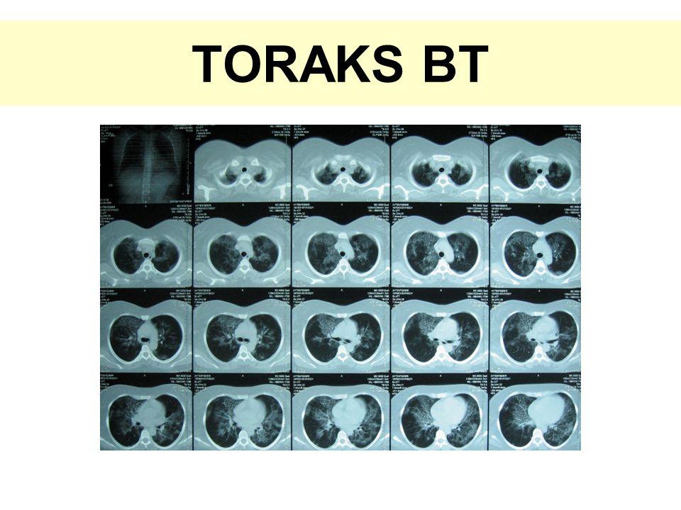TORAKS BT