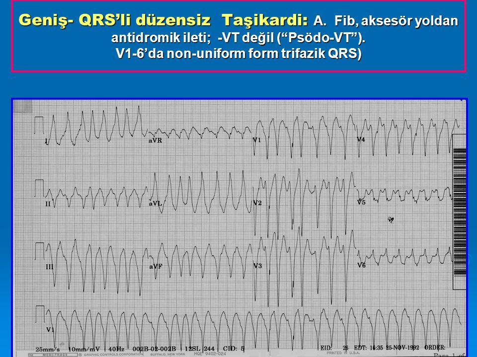 Geniş- QRS'li düzensiz Taşikardi: A