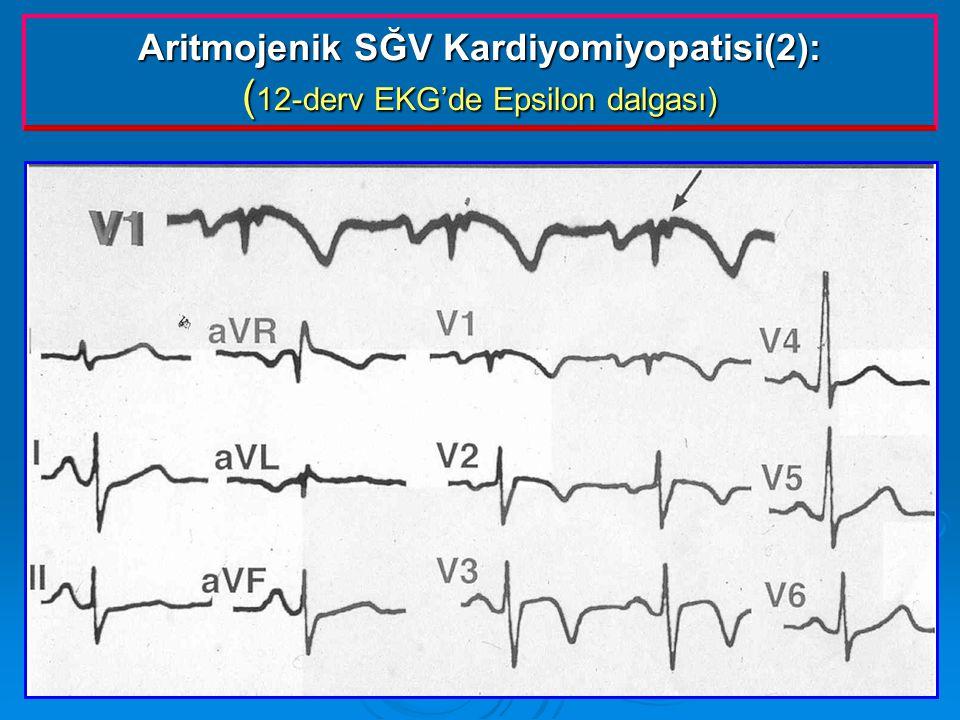 Aritmojenik SĞV Kardiyomiyopatisi(2): (12-derv EKG'de Epsilon dalgası)