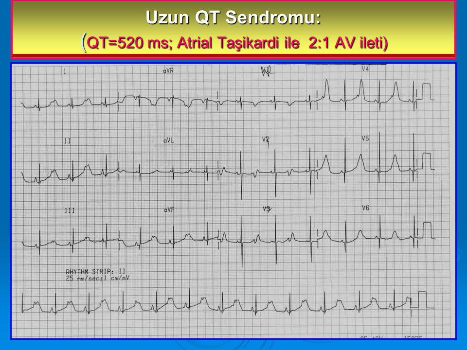 Uzun QT Sendromu: (QT=520 ms; Atrial Taşikardi ile 2:1 AV ileti)