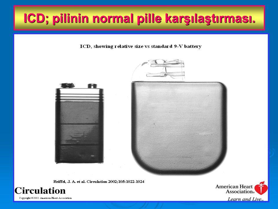 ICD; pilinin normal pille karşılaştırması.