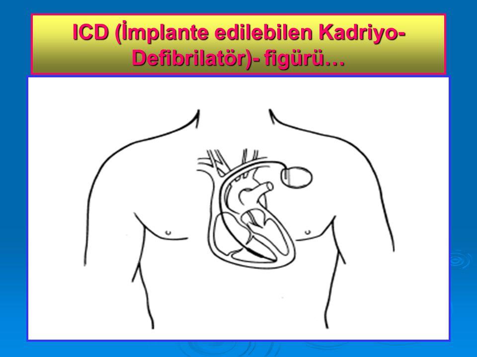 ICD (İmplante edilebilen Kadriyo-Defibrilatör)- figürü…