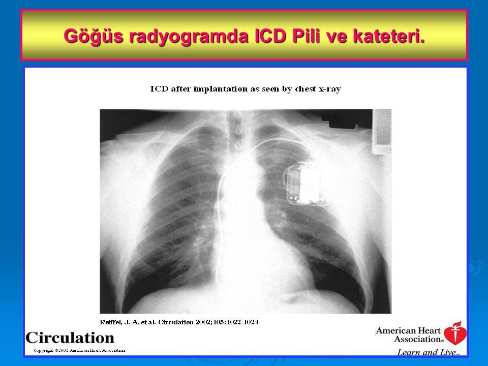 Göğüs radyogramda ICD Pili ve kateteri.