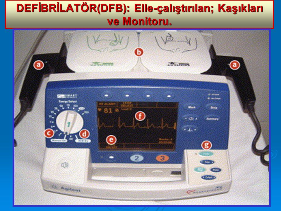 DEFİBRİLATÖR(DFB): Elle-çalıştırılan; Kaşıkları ve Monitoru.