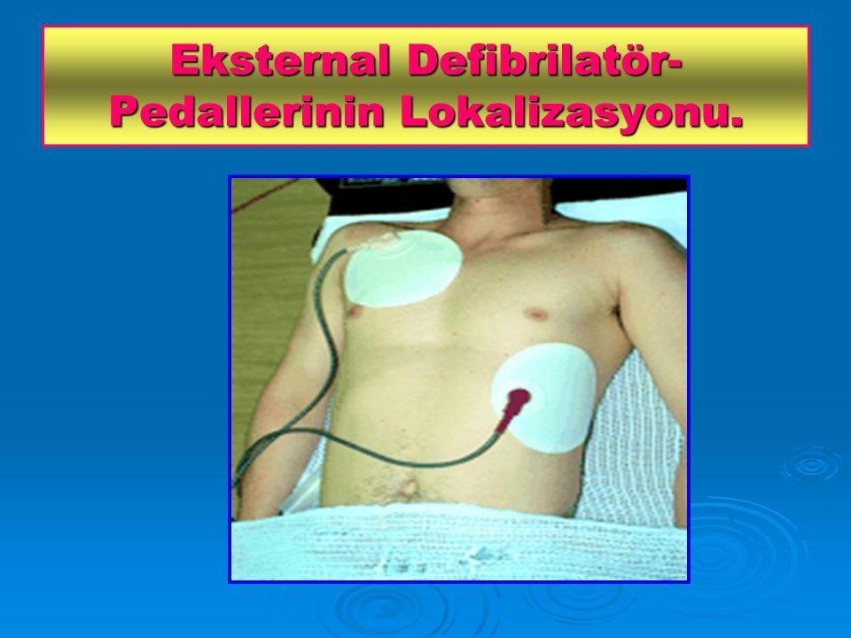 Eksternal Defibrilatör- Pedallerinin Lokalizasyonu.