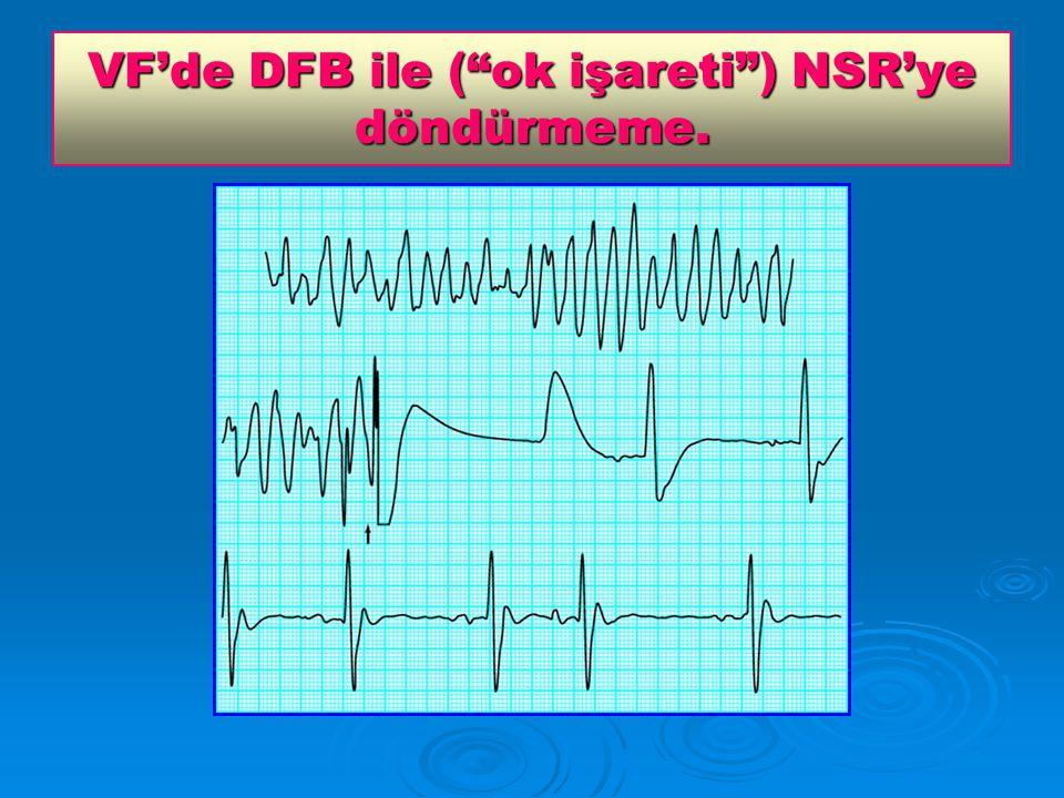 VF'de DFB ile ( ok işareti ) NSR'ye döndürmeme.