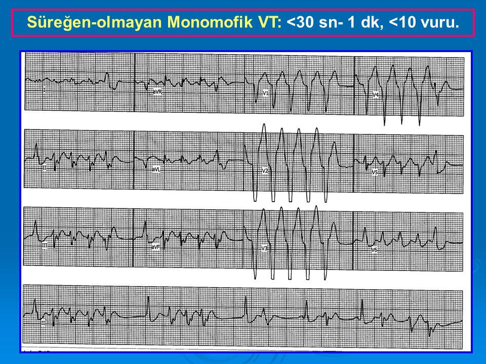 Süreğen-olmayan Monomofik VT: <30 sn- 1 dk, <10 vuru.