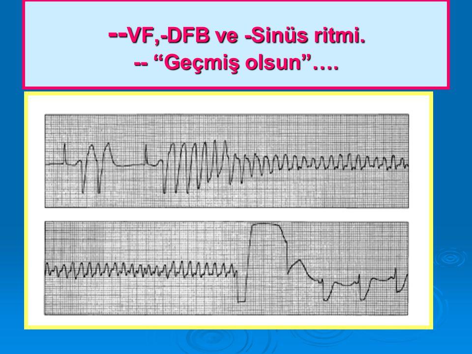 --VF,-DFB ve -Sinüs ritmi. -- Geçmiş olsun ….