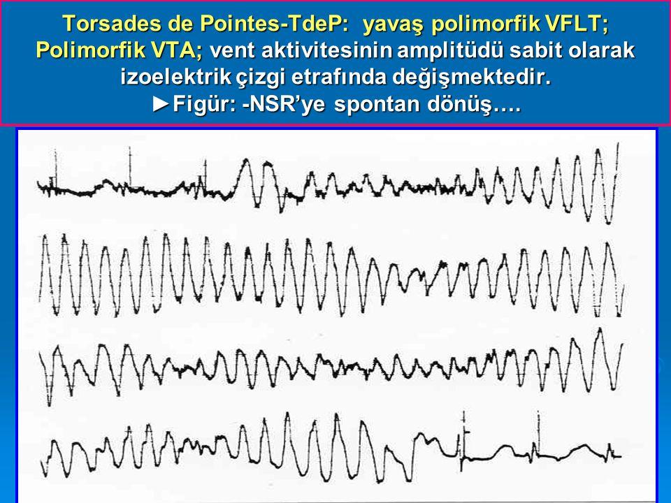 Torsades de Pointes-TdeP: yavaş polimorfik VFLT; Polimorfik VTA; vent aktivitesinin amplitüdü sabit olarak izoelektrik çizgi etrafında değişmektedir.