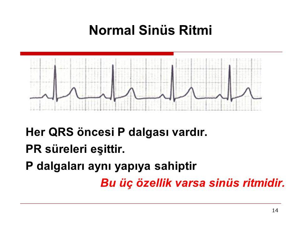 Normal Sinüs Ritmi Her QRS öncesi P dalgası vardır.