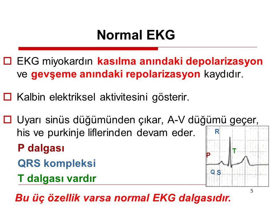 Bu üç özellik varsa normal EKG dalgasıdır.