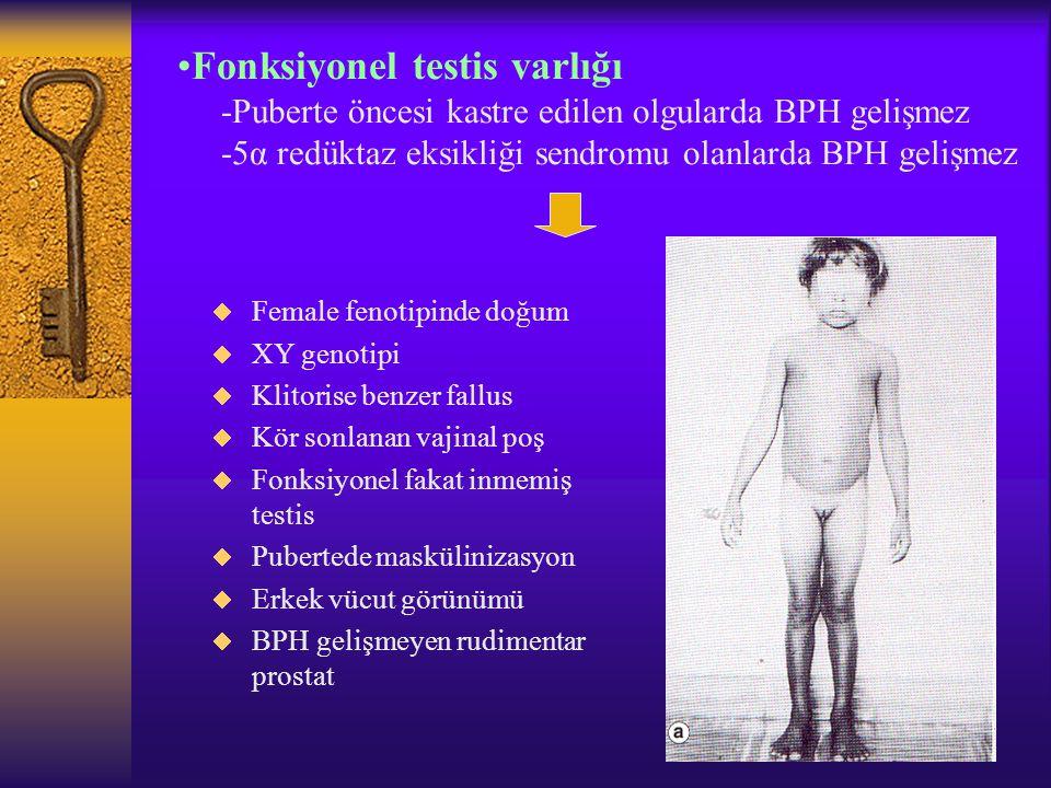 Fonksiyonel testis varlığı -Puberte öncesi kastre edilen olgularda BPH gelişmez -5α redüktaz eksikliği sendromu olanlarda BPH gelişmez