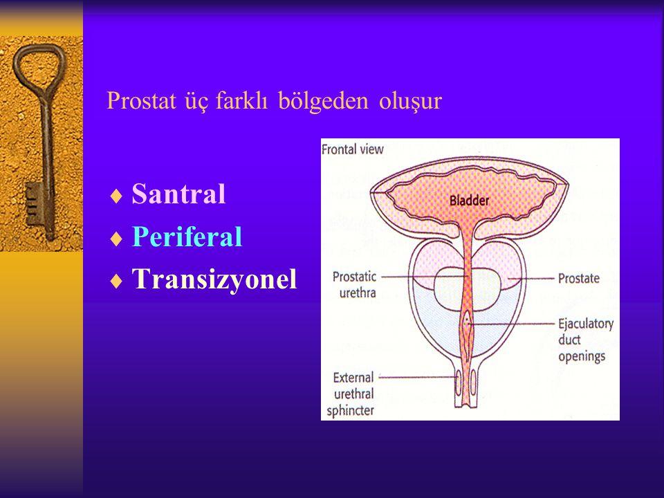 Prostat üç farklı bölgeden oluşur