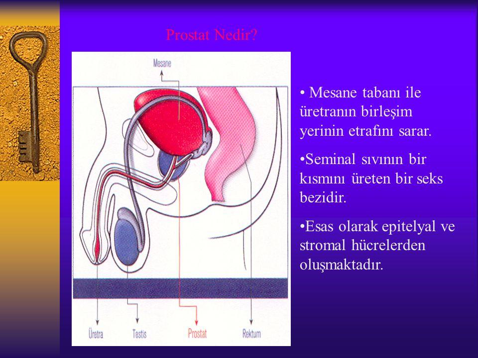 Prostat Nedir Mesane tabanı ile üretranın birleşim yerinin etrafını sarar. Seminal sıvının bir kısmını üreten bir seks bezidir.