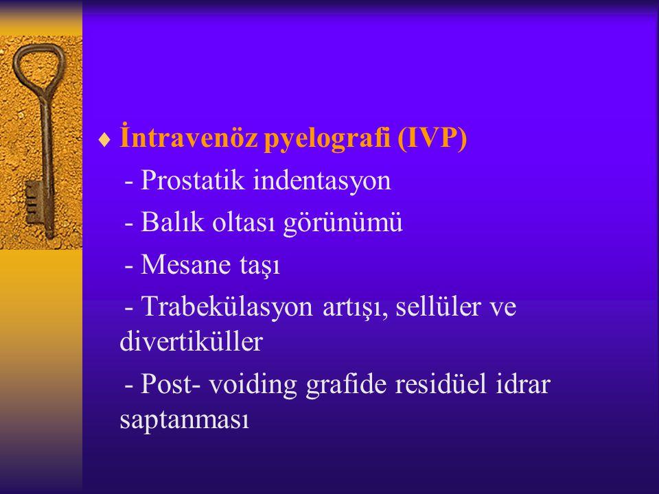 İntravenöz pyelografi (IVP)
