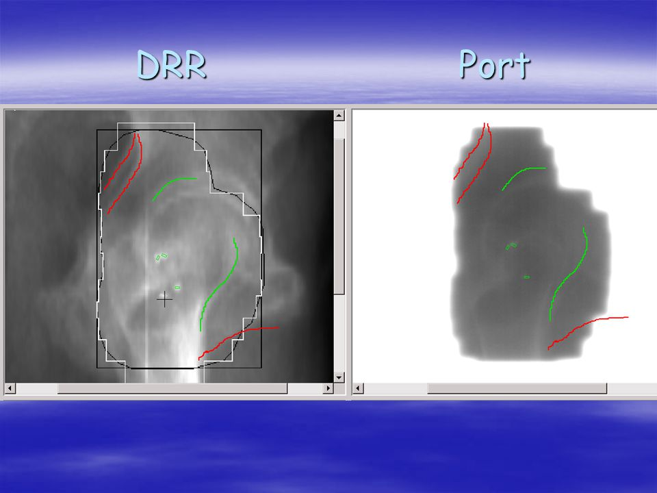 DRR Port
