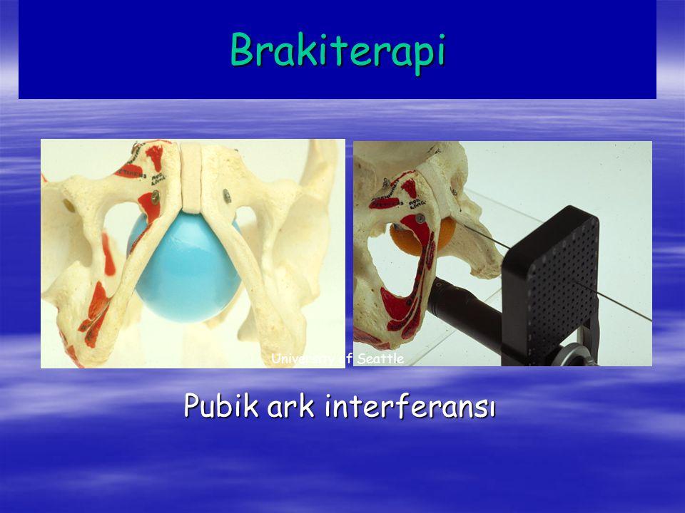 Brakiterapi University of Seattle Pubik ark interferansı