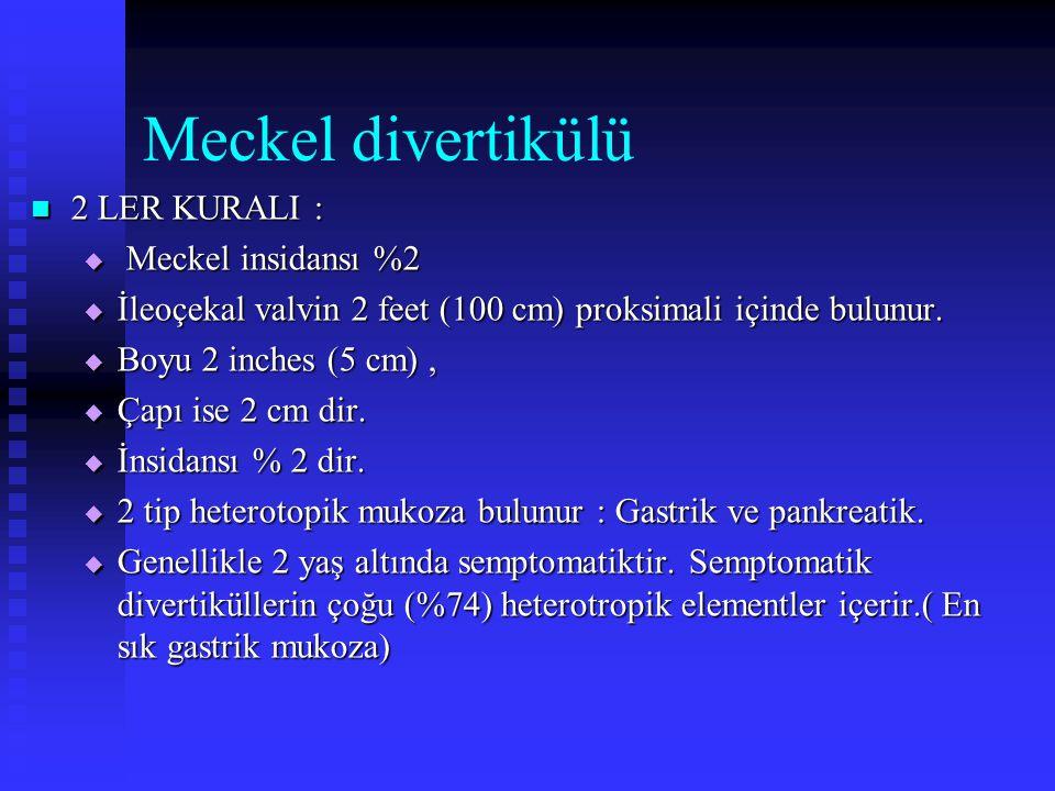 Meckel divertikülü 2 LER KURALI : Meckel insidansı %2