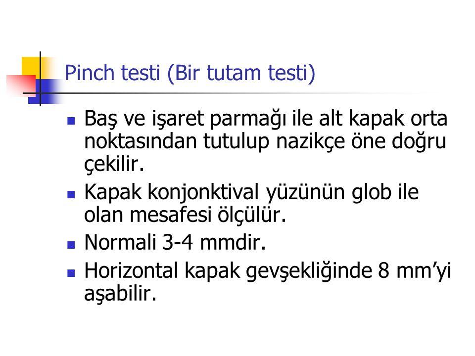 Pinch testi (Bir tutam testi)