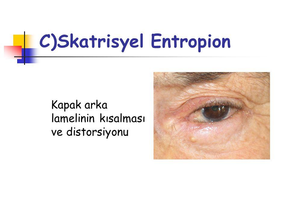 C)Skatrisyel Entropion