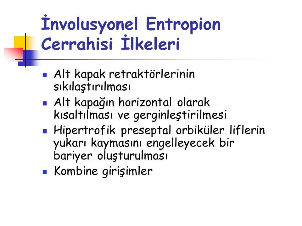 İnvolusyonel Entropion Cerrahisi İlkeleri