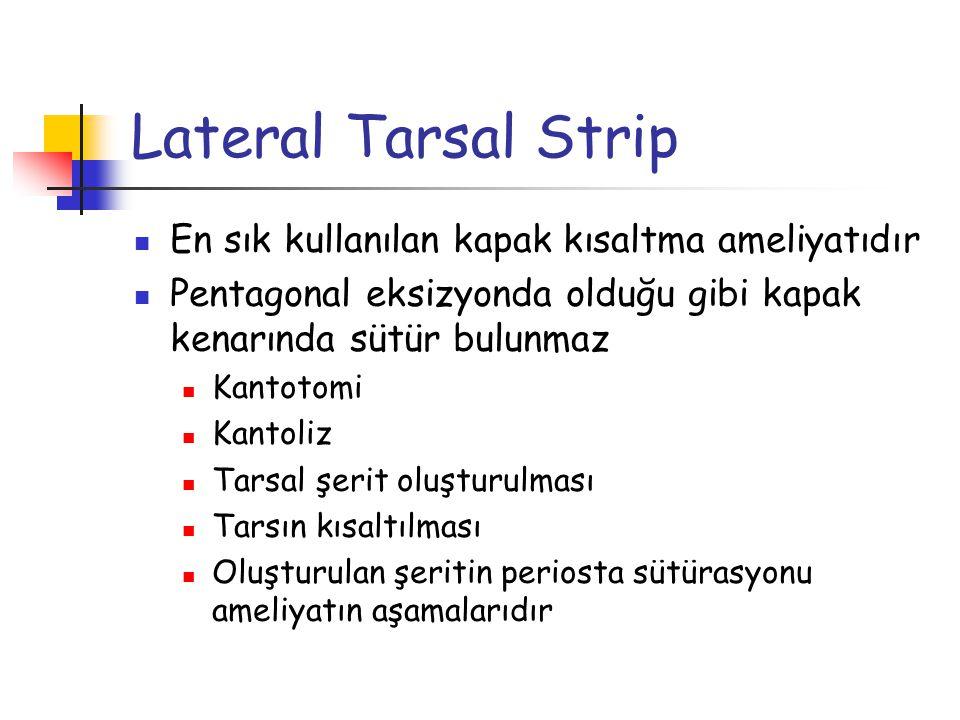 Lateral Tarsal Strip En sık kullanılan kapak kısaltma ameliyatıdır