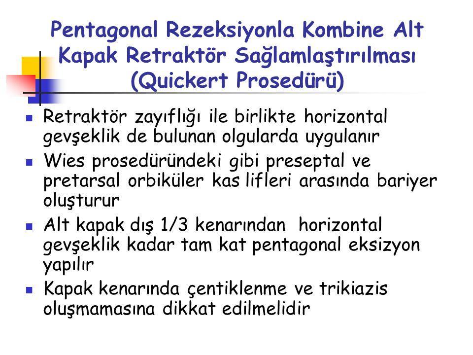 Pentagonal Rezeksiyonla Kombine Alt Kapak Retraktör Sağlamlaştırılması (Quickert Prosedürü)