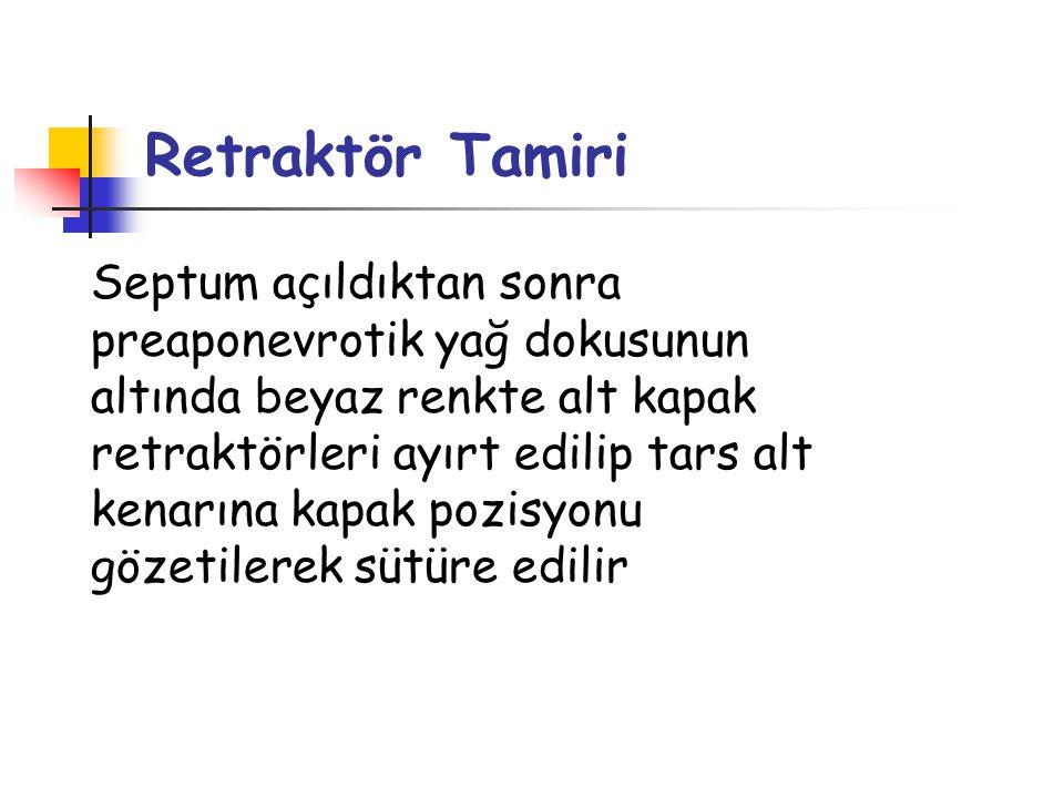Retraktör Tamiri
