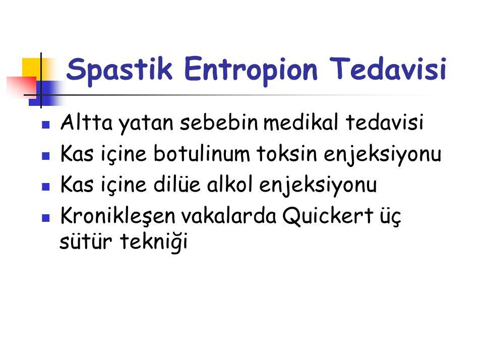 Spastik Entropion Tedavisi