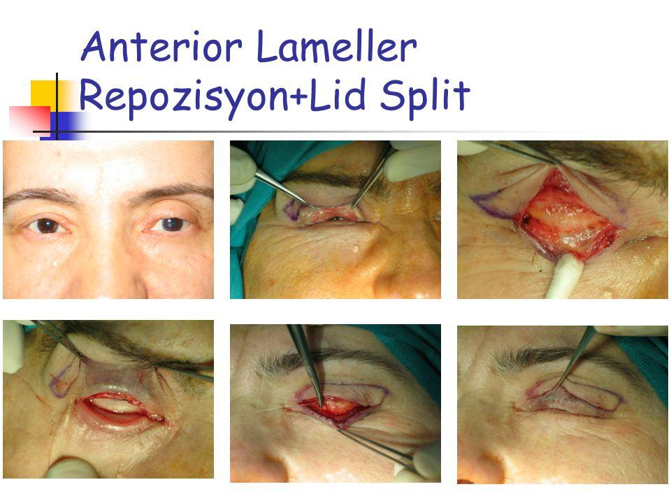 Anterior Lameller Repozisyon+Lid Split