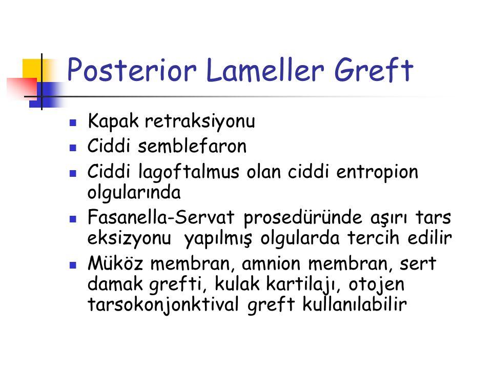 Posterior Lameller Greft