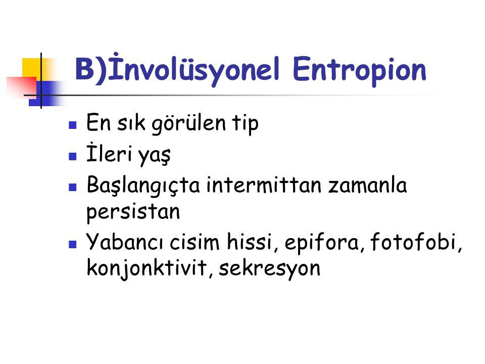 B)İnvolüsyonel Entropion