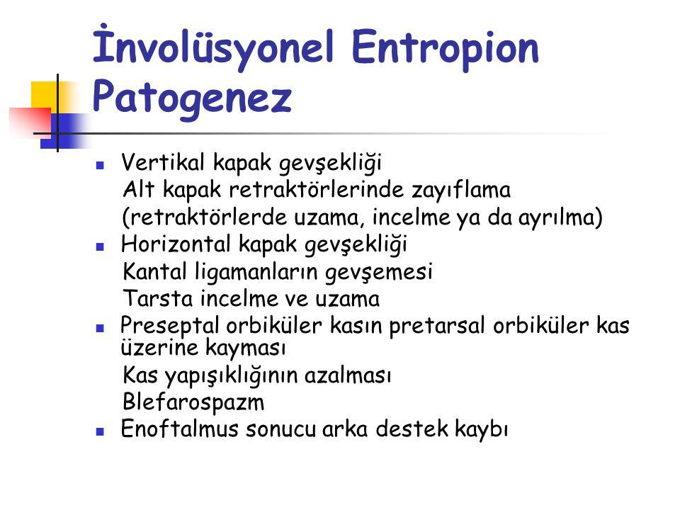 İnvolüsyonel Entropion Patogenez