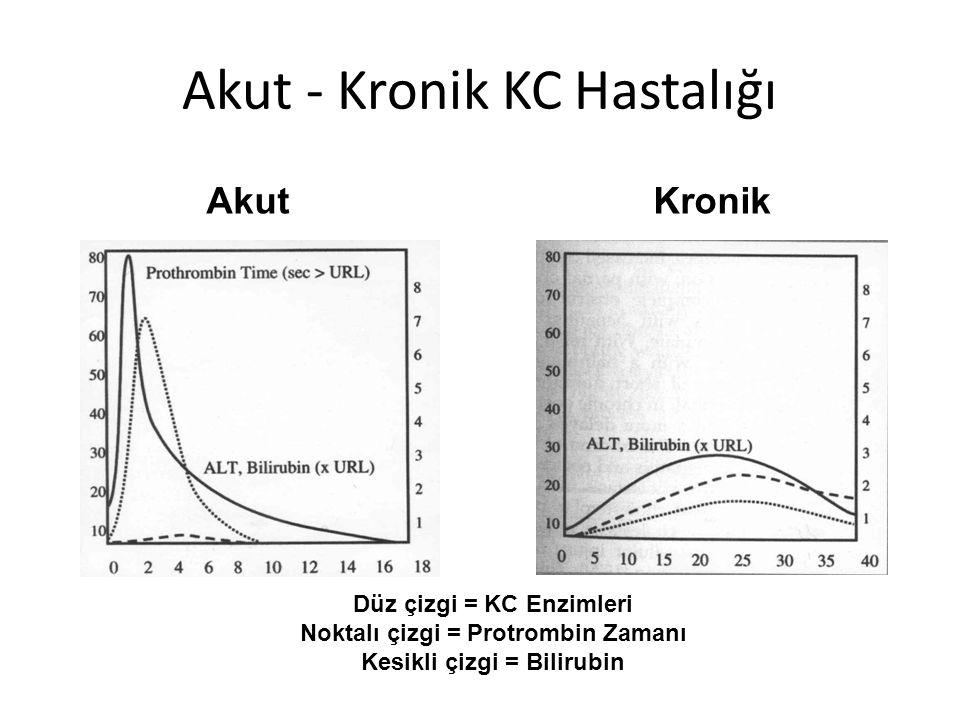 Akut - Kronik KC Hastalığı