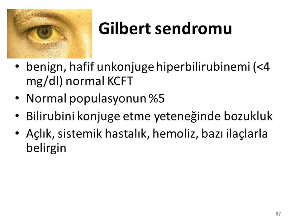 Gilbert sendromu benign, hafif unkonjuge hiperbilirubinemi (<4 mg/dl) normal KCFT. Normal populasyonun %5.