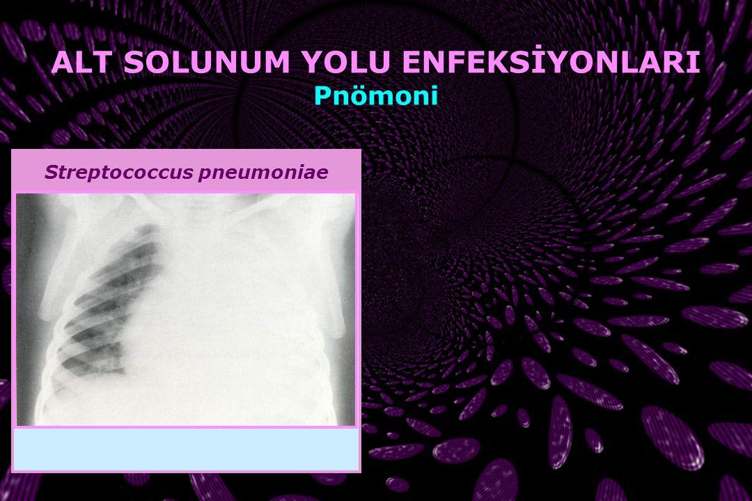 ALT SOLUNUM YOLU ENFEKSİYONLARI Streptococcus pneumoniae