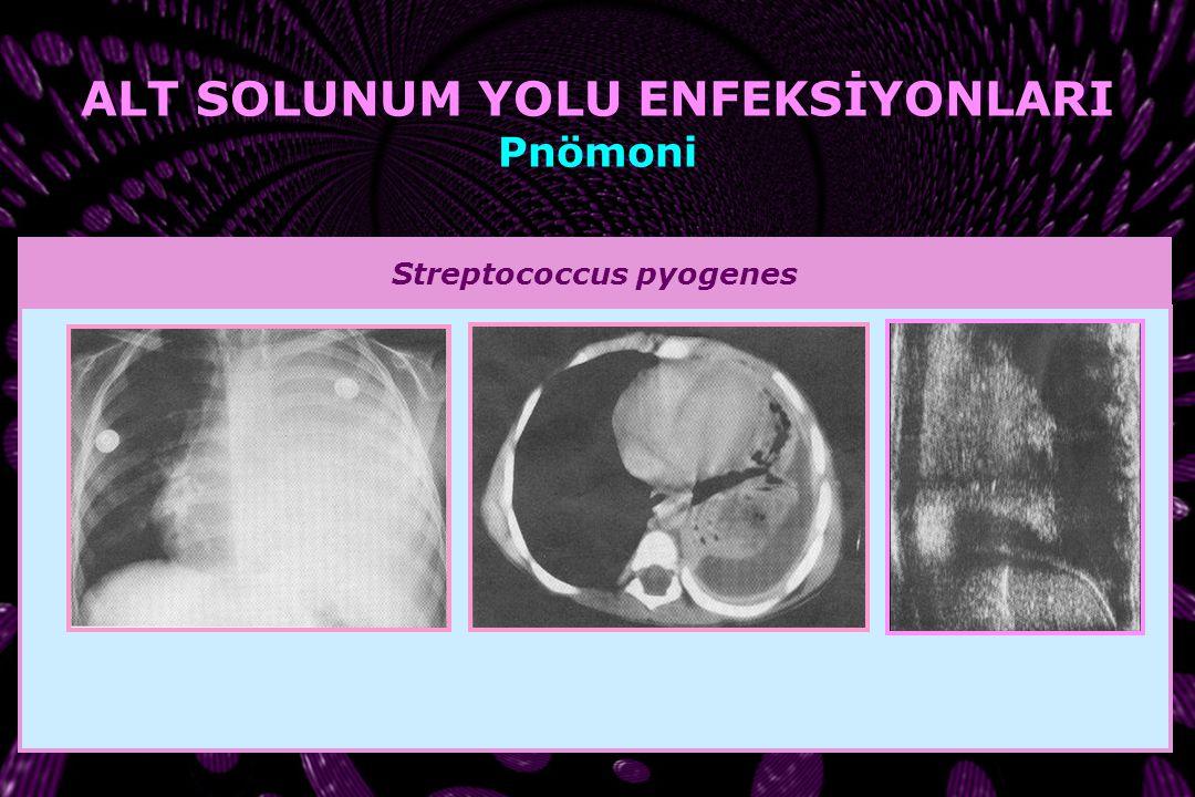 ALT SOLUNUM YOLU ENFEKSİYONLARI Streptococcus pyogenes