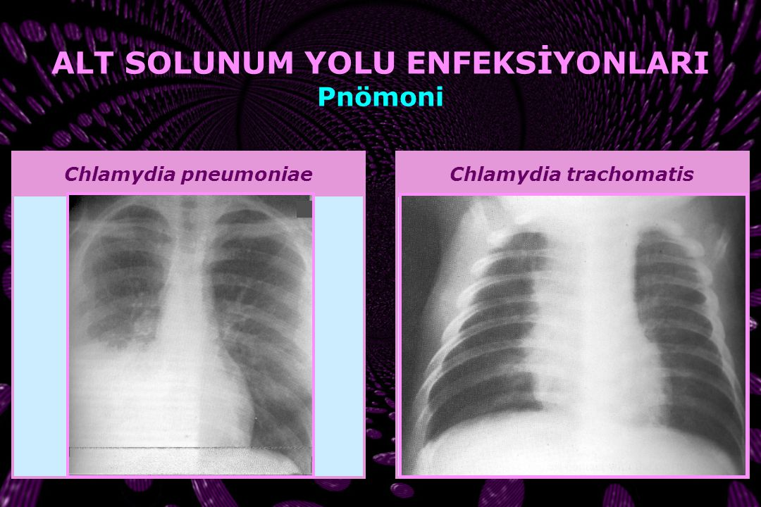 ALT SOLUNUM YOLU ENFEKSİYONLARI Chlamydia trachomatis
