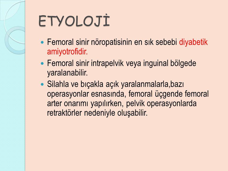 ETYOLOJİ Femoral sinir nöropatisinin en sık sebebi diyabetik amiyotrofidir. Femoral sinir intrapelvik veya inguinal bölgede yaralanabilir.