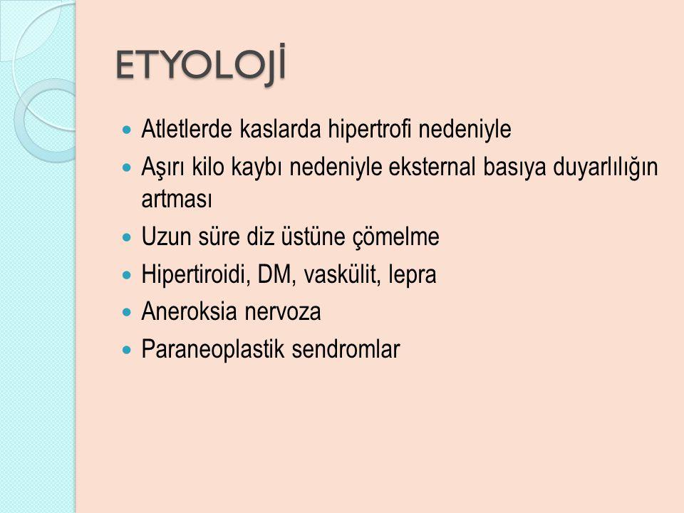 ETYOLOJİ Atletlerde kaslarda hipertrofi nedeniyle