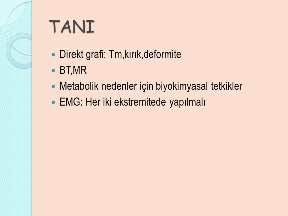 TANI Direkt grafi: Tm,kırık,deformite BT,MR