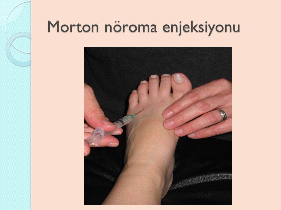 Morton nöroma enjeksiyonu