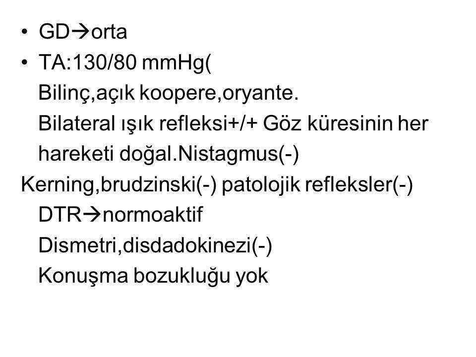 GDorta TA:130/80 mmHg( Bilinç,açık koopere,oryante. Bilateral ışık refleksi+/+ Göz küresinin her.