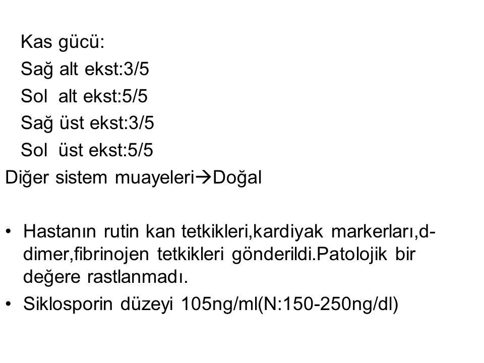 Kas gücü: Sağ alt ekst:3/5. Sol alt ekst:5/5. Sağ üst ekst:3/5. Sol üst ekst:5/5. Diğer sistem muayeleriDoğal.
