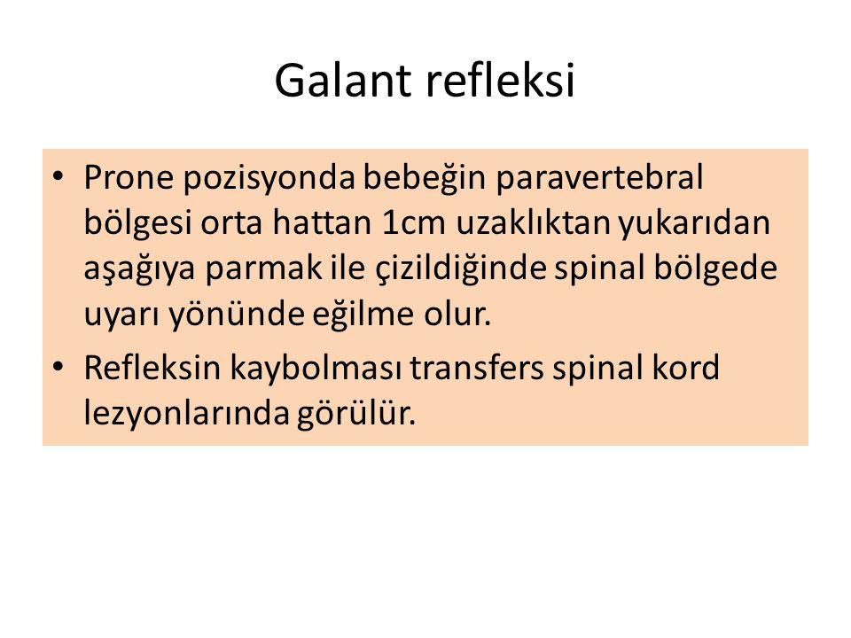 Galant refleksi