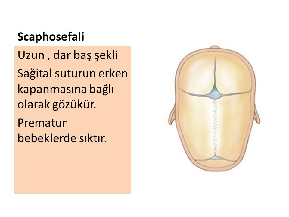 Scaphosefali Uzun , dar baş şekli. Sağital suturun erken kapanmasına bağlı olarak gözükür.