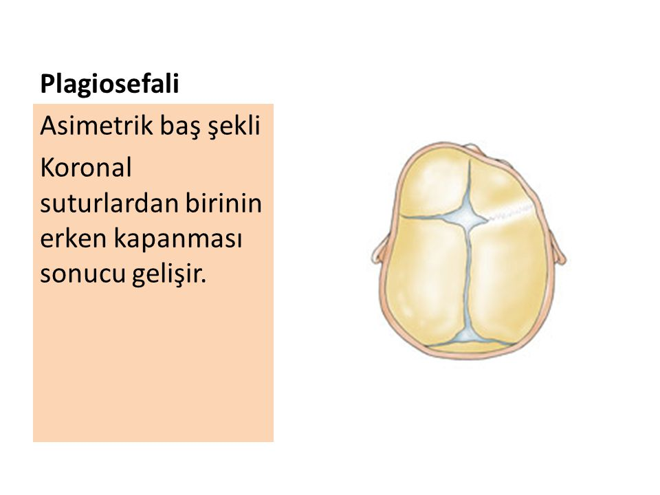 Plagiosefali Asimetrik baş şekli Koronal suturlardan birinin erken kapanması sonucu gelişir.